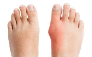 cure bunions at home